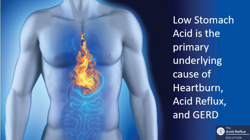Low Stomach Acid is the Main Cause of Heartburn, Acid Reflux, and GERD